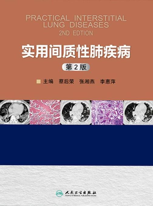 实用间质性肺疾病(第2版)