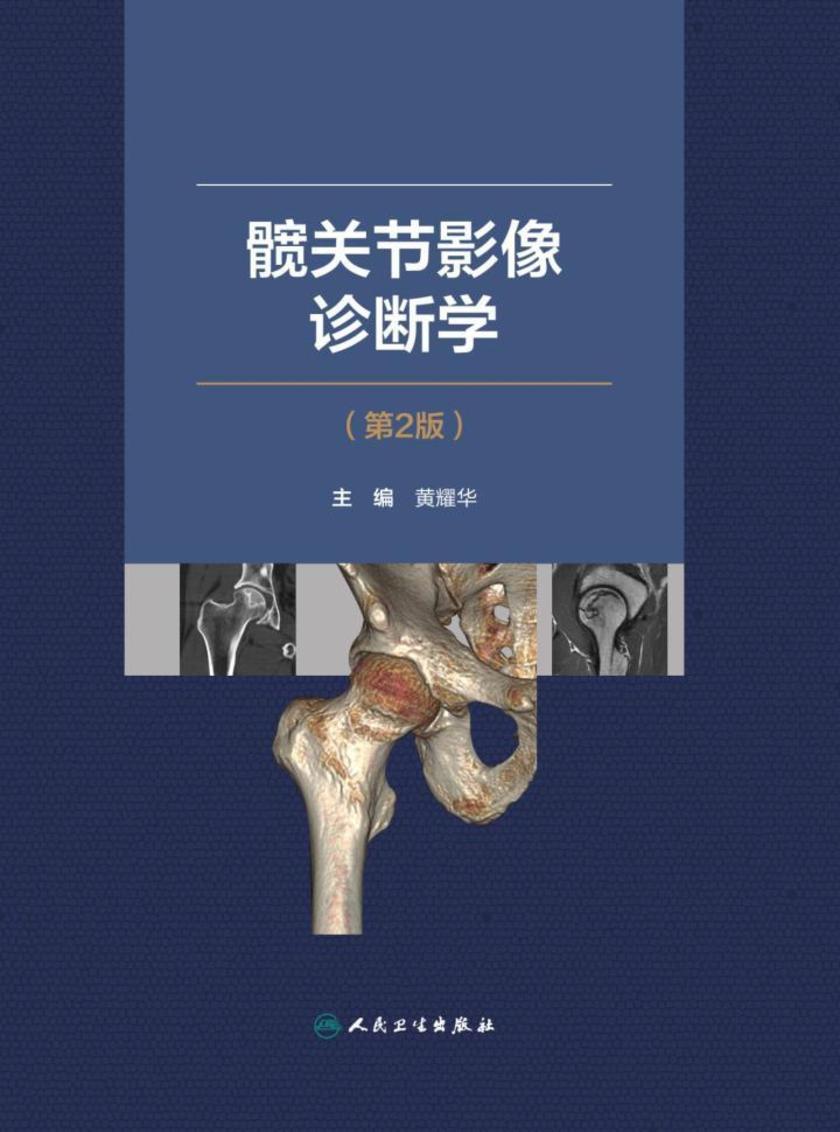 髋关节影像诊断学  (第2版)