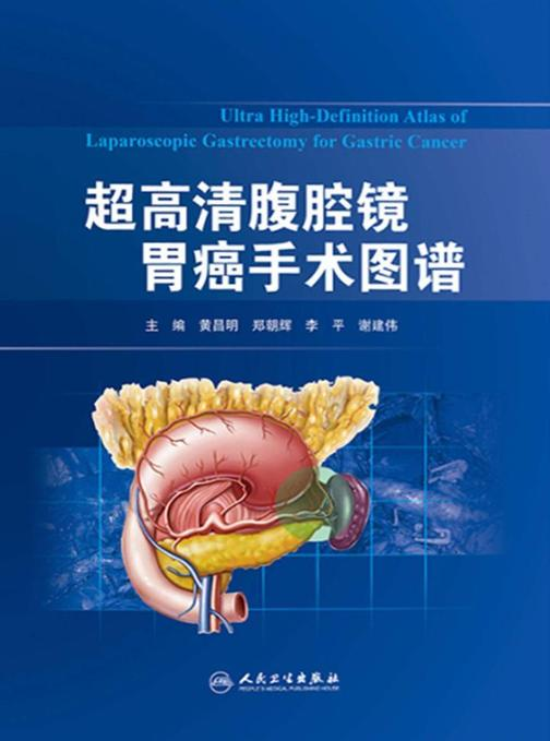 超高清腹腔镜胃癌手术图谱