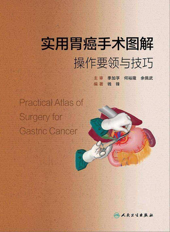实用胃癌手术图解