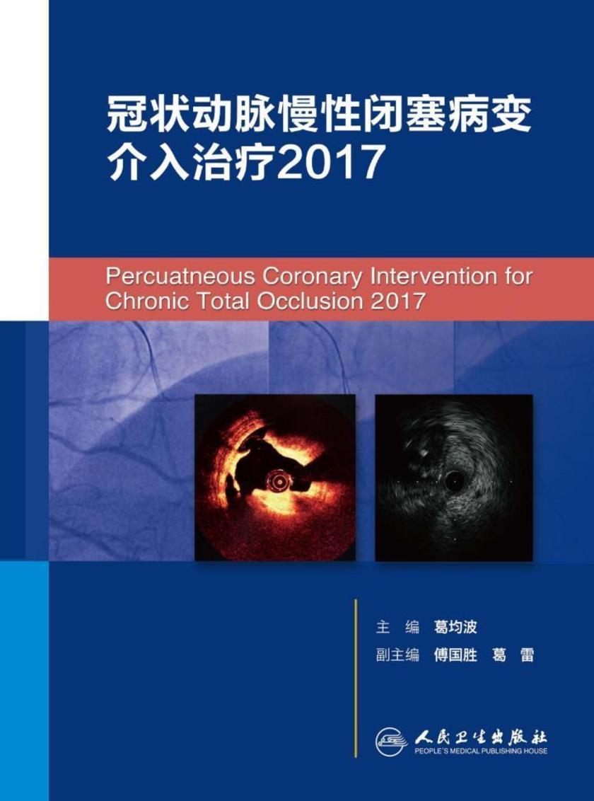 冠状动脉慢性闭塞病变介入治疗2017