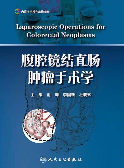 腹腔镜结直肠肿瘤手术学