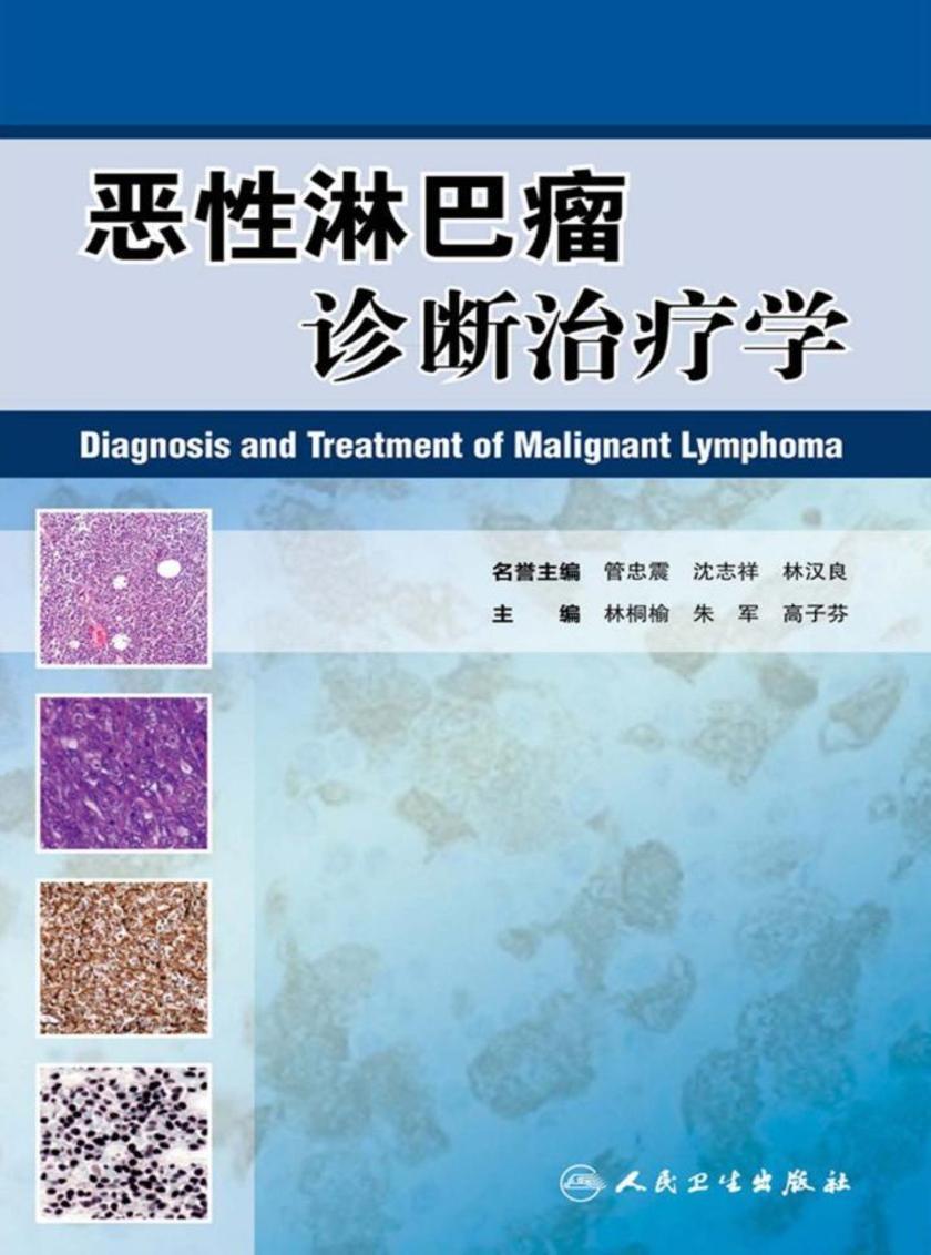 恶性淋巴瘤诊断治疗学
