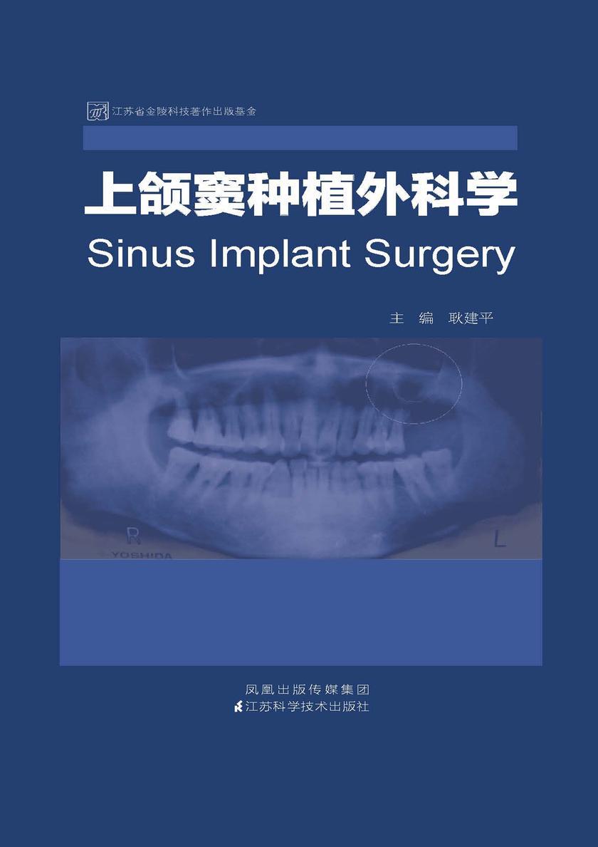 上颌窦种植外科学(仅适用PC阅读)