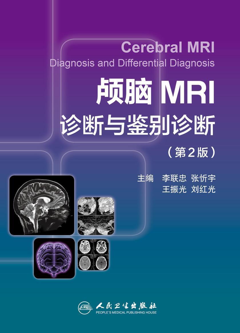 颅脑MRI诊断与鉴别诊断(第2版)