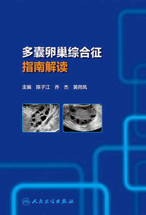 多囊卵巢综合征指南解读