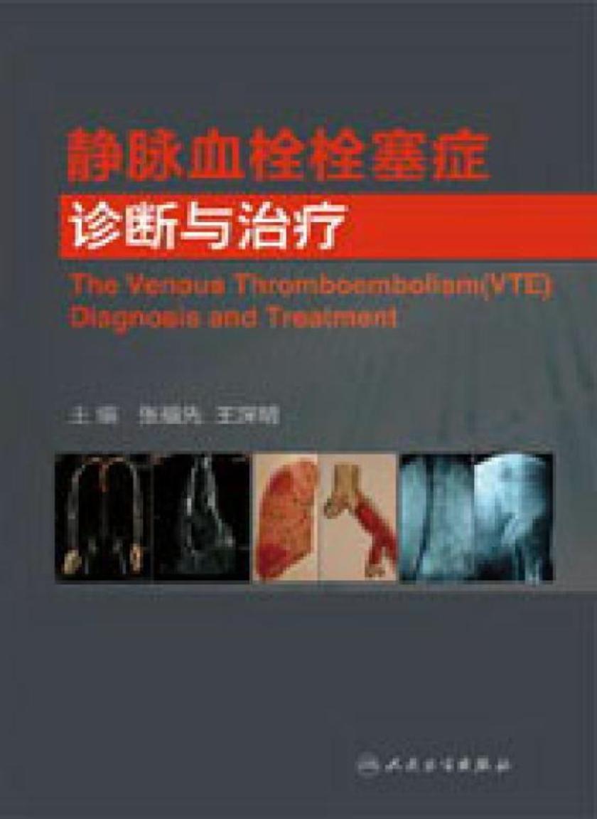静脉血栓栓塞症诊断与治疗