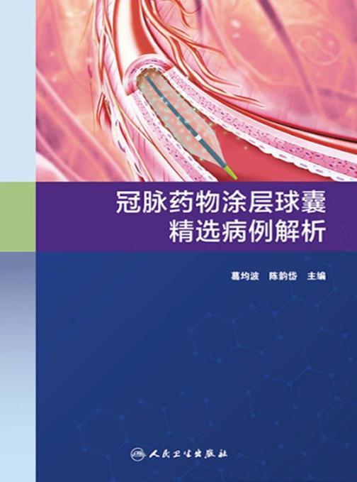 冠脉药物涂层球囊精选病例解析